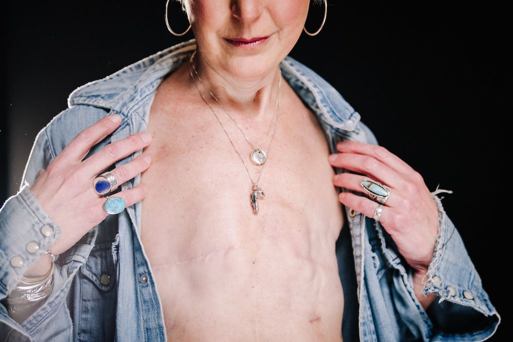 Breast Cancer Survivor Marianne - Portrait 2